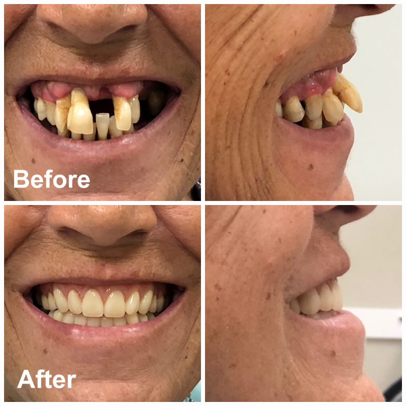 Immediate Upper & Lower Dentures Ottawa | Before After Photos