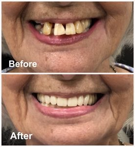 Immediate Dentures | Dentures Ottawa | Dentures Before After