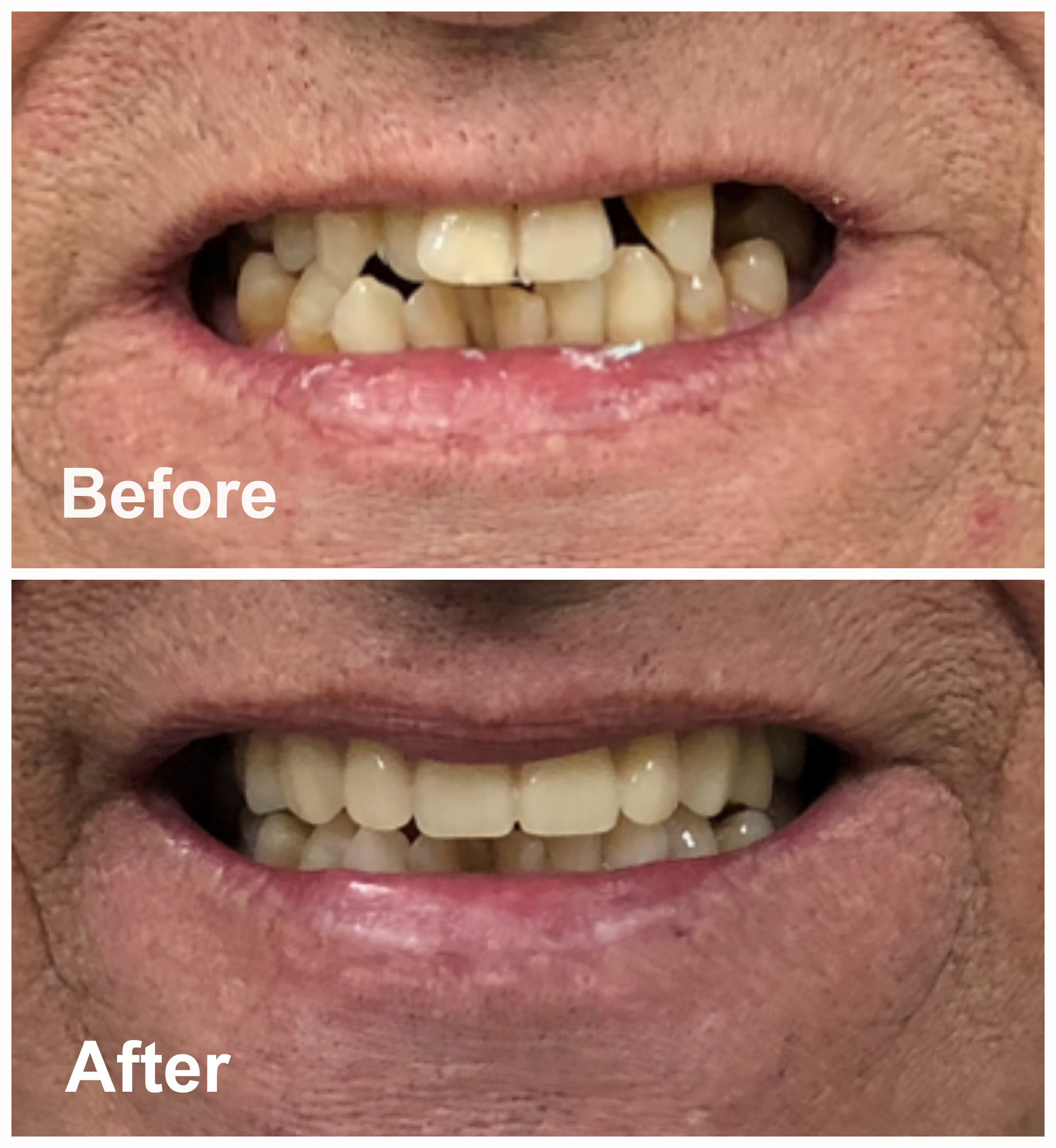 Immediate Upper Dentures Before After Photos