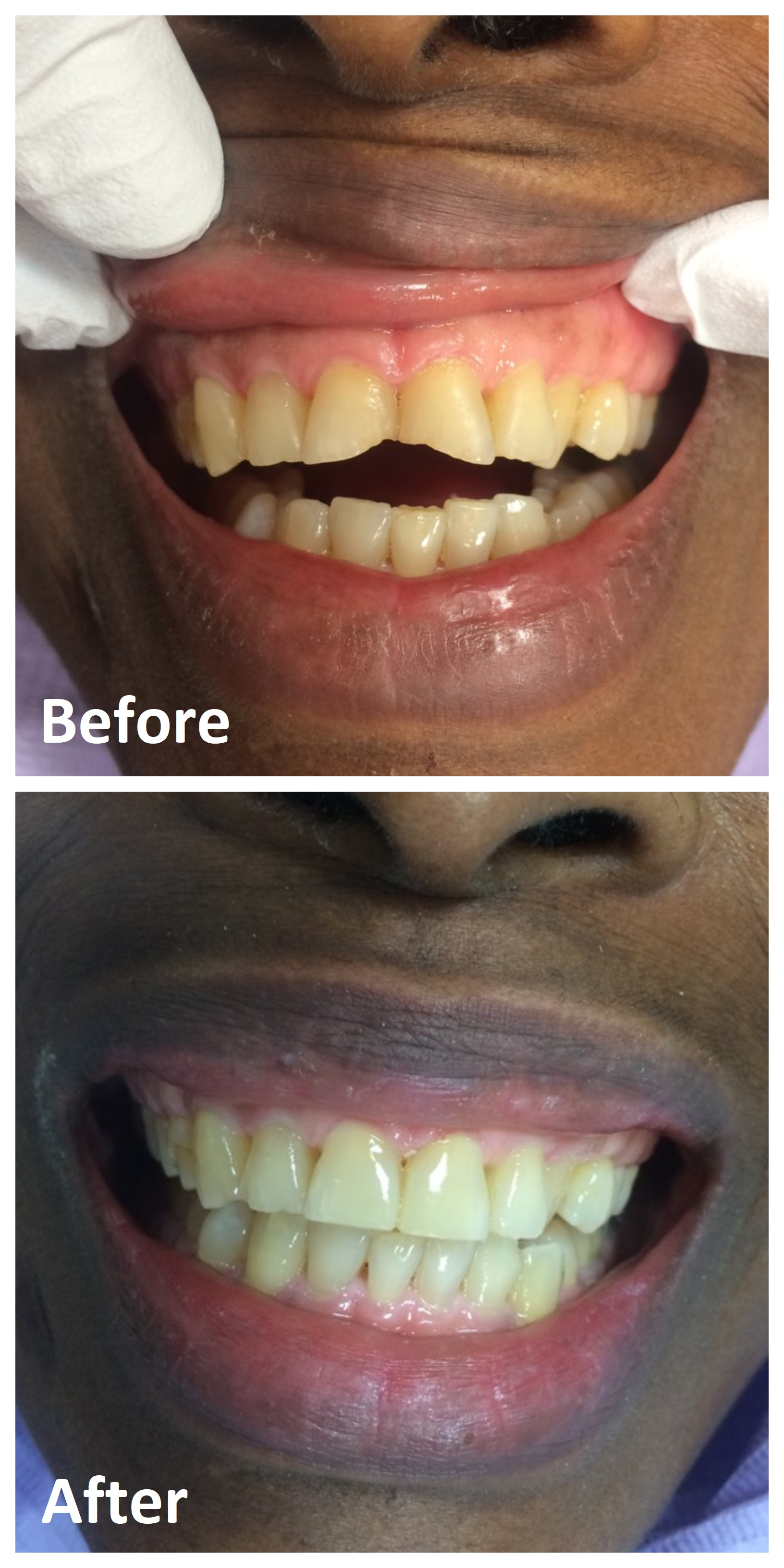 Composite Fillings Front Teeth Before and After | White Fillings Ottawa