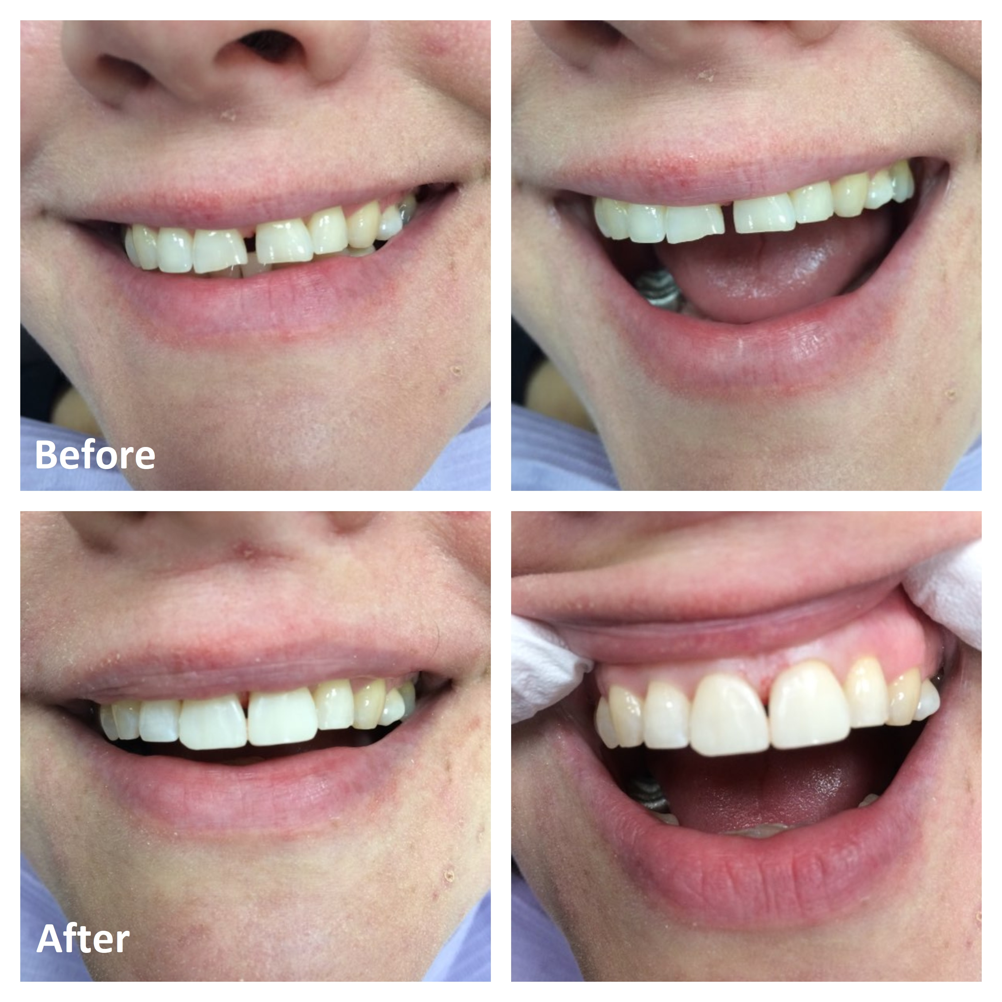 Cosmetic Dentistry Procedures | Before and After Photos | Cosmetic Dentist Ottawa