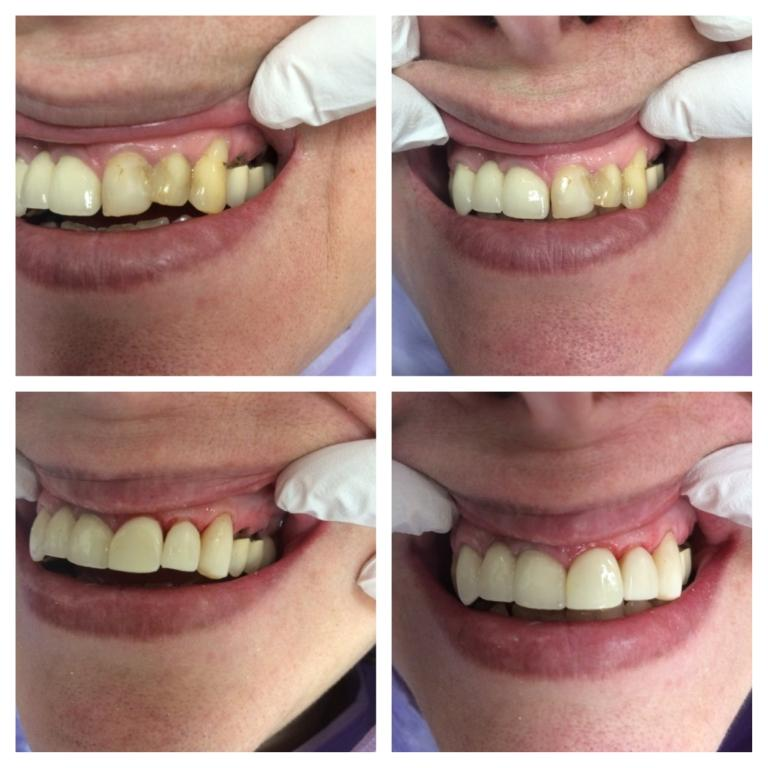 Dental Bridge Before and After Pics | Dental Clinic Ottawa