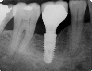Single Tooth Implant | Rockcliffe Dental & Denture Centre