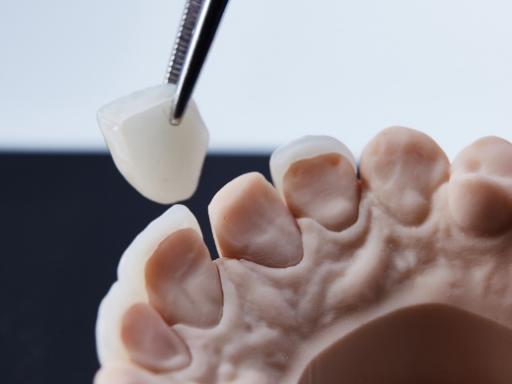 Dental Veneers vs Dental Crowns | Ottawa | Rockcliffe Dental & Denture Centre