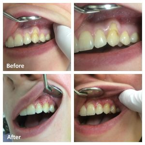 Gum Tissue Graft Before and After | Gum Grafts Ottawa