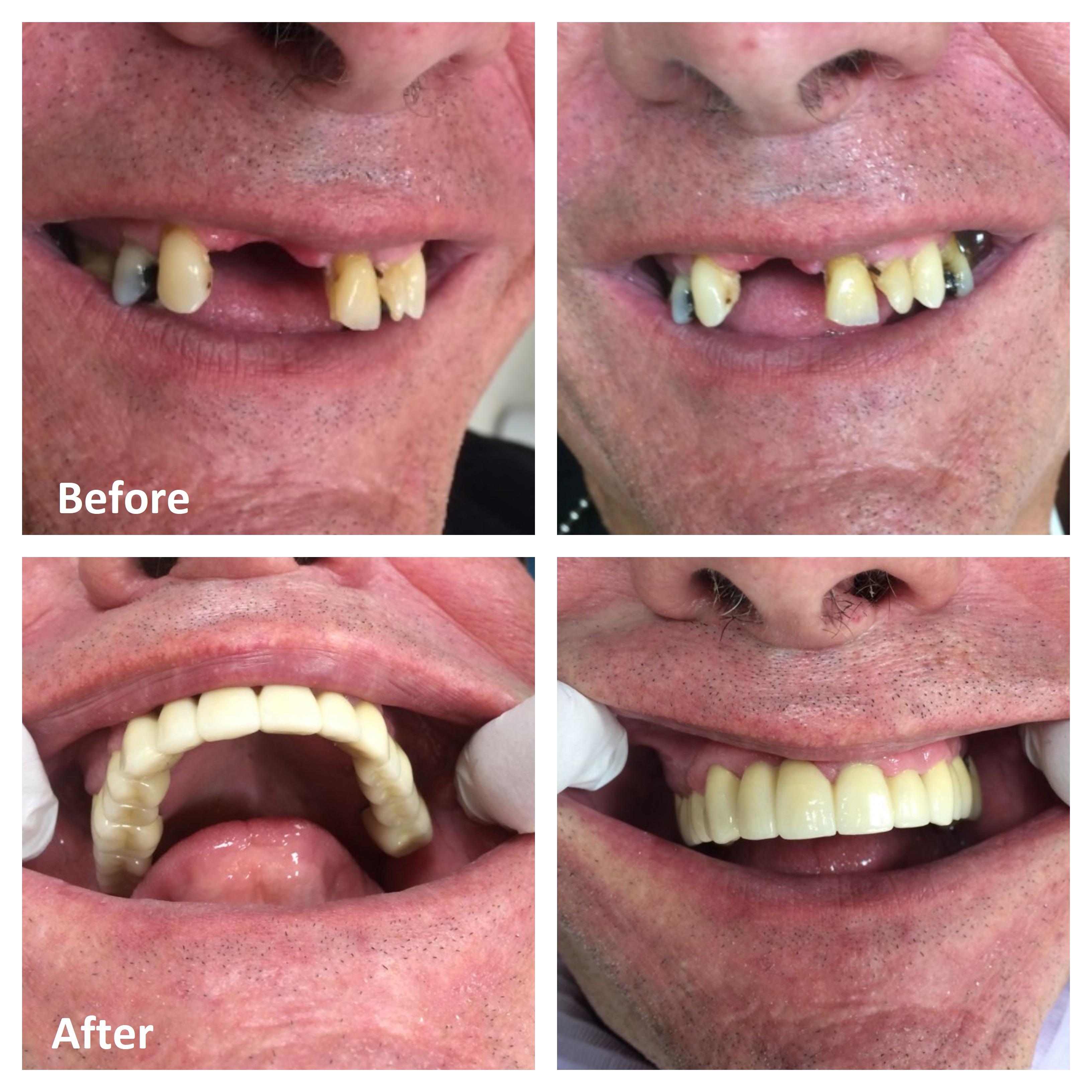 Smile Makeover Ottawa | Cosmetic Dentistry Ottawa