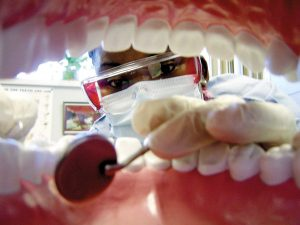 Teeth Cleaning Ottawa | Dental Hygienist Ottawa