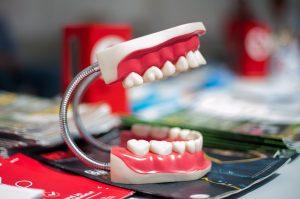 What are Gum Grafts | Gum Graft Surgery & Procedure Ottawa