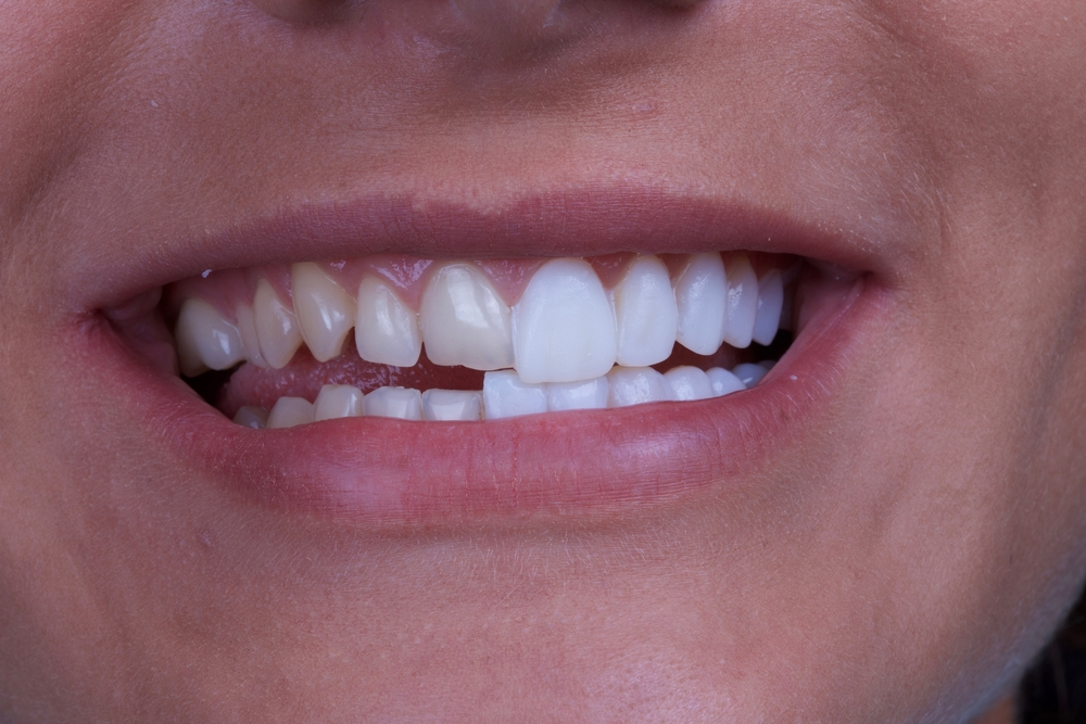 4 Ways We Can Makeover Your Smile