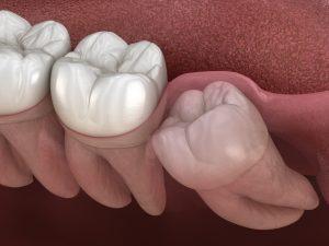 Wisdom Tooth Impaction | Rockcliffe Dental & Denture Centre
