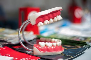 Everything You Need to Know about Dentures in Ottawa