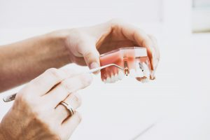 What are Dental Implants? | Dental Implant Procedure | Tooth Implant Procedure | Ottawa