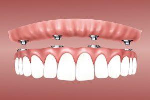 Dental Implant Procedure in Ottawa | Implant Dentist | Rockcliffe Dental & Denture Centre