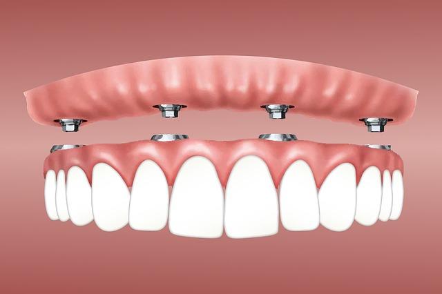 All-on-Four Dental Implants Ottawa | Teeth-in-a-Day Ottawa