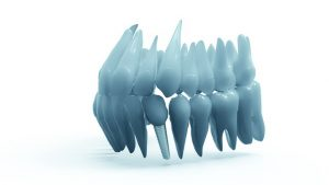 Dental Implants Ottawa | Cost of Dental Implants