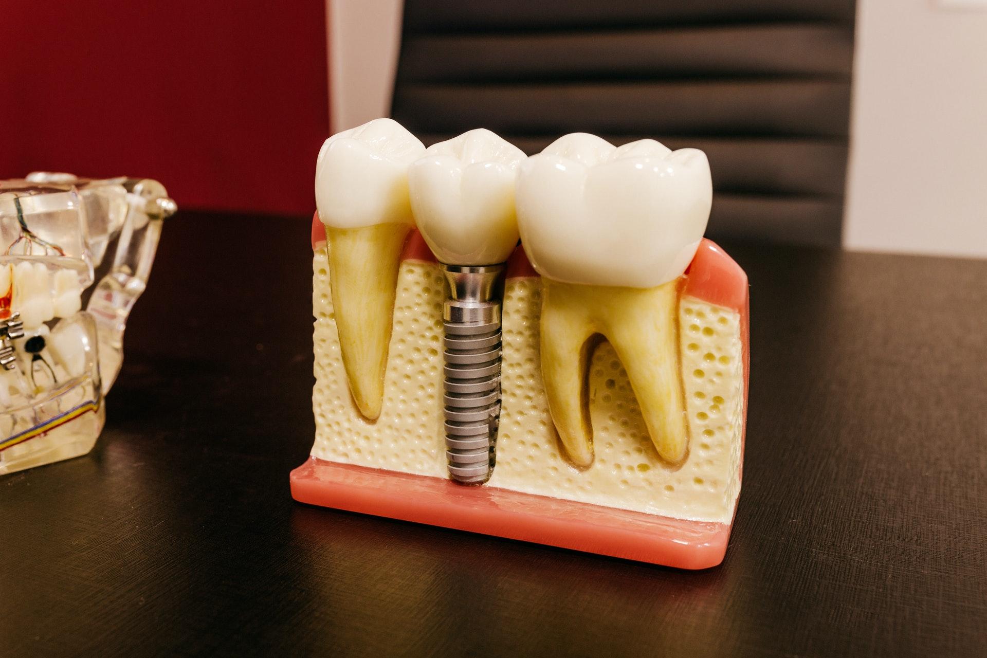Dental Implant Surgery Ottawa | Dental Implants Ottawa | Implant Dentist Ottawa