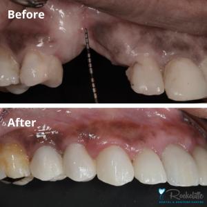 Bone Graft Surgery for Dental Implants | Rockcliffe Dental & Denture Centre