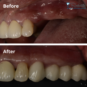 Implant Bridge Before After | Implant-Supported Bridges | Rockcliffe Dental & Denture Centre