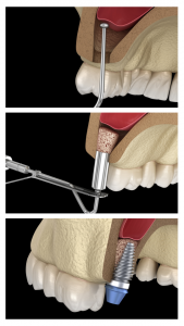 Sinus Lift Procedure | Ottawa | Rockcliffe Dental & Denture Centre