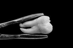 What to Do if Your Tooth Gets Knocked Out?   Rockcliffe Dental & Denture Centre