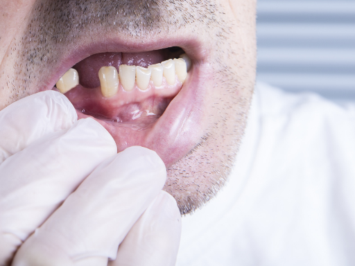 Common Dental Emergencies: Knocked-Out Tooth | Rockcliffe Dental & Denture Centre
